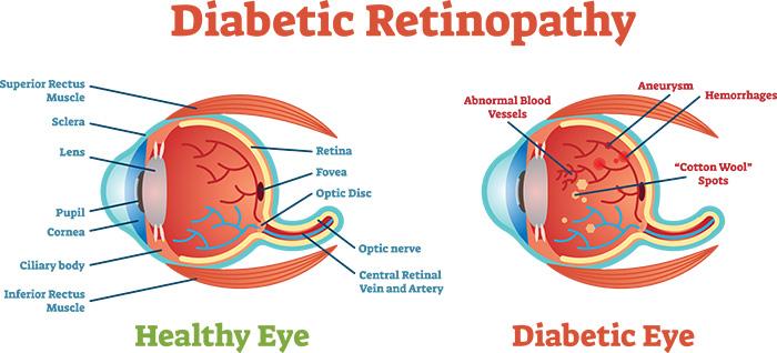 what is retinopathy in diabetes